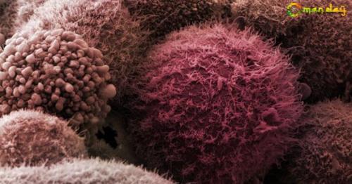 Pancreatic cancer has a poor prognosis