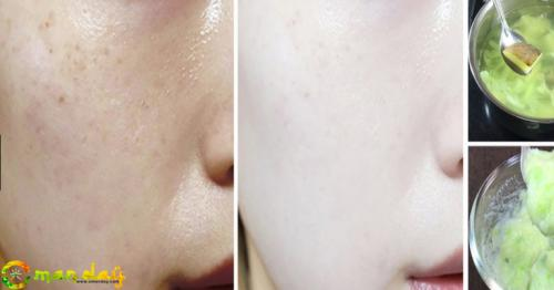 Permanent skin whitening with boiled potato