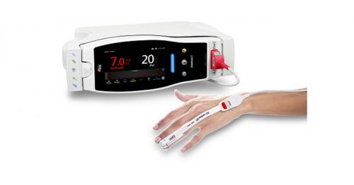 New Study Evaluates Ability of Masimo SpHb® (Noninvasive Hemoglobin) to Estimate Timing for Invasive Measurement to Detect Anemia During Surgery