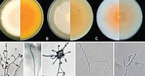 New fungus strain discovered inside human body, The Ministry of Health Oman, latest health news, Oman Health news, Dr Abdullah Al Hatmi, a senior specialist microbiologist and lab researcher at the Directorate General for Health Services in Al Dhahir