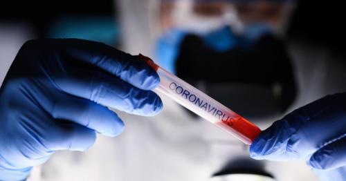 Global Coronavirus Death Count Tops 160,000: Report