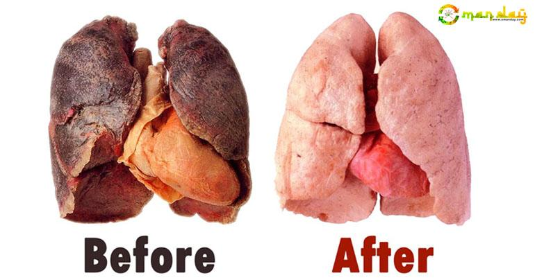 This Recipe Will Easily Clear Your Lungs In 3 Days Even If You Smoke More Than